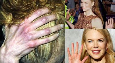 Nicole Kidmans reddish hands